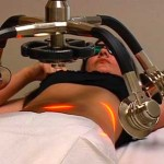 Laser Assisted Liposuction