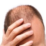 Baldness Hair Transplant Turkey